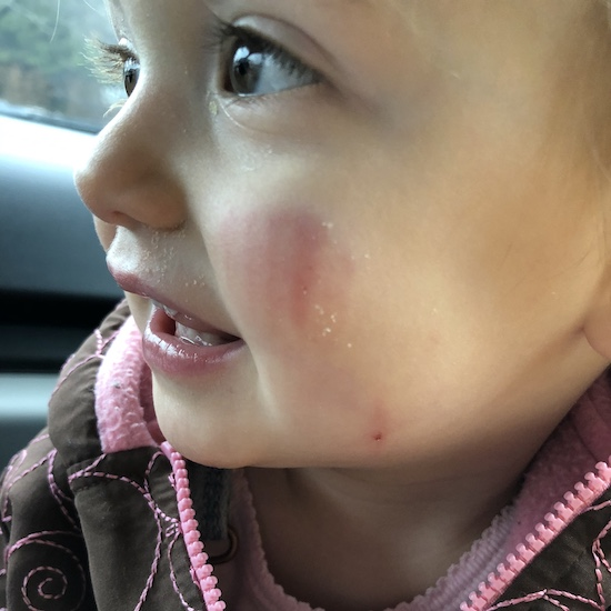 Dog bite on face of baby